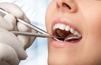 Fort Wayne IN Dentist
